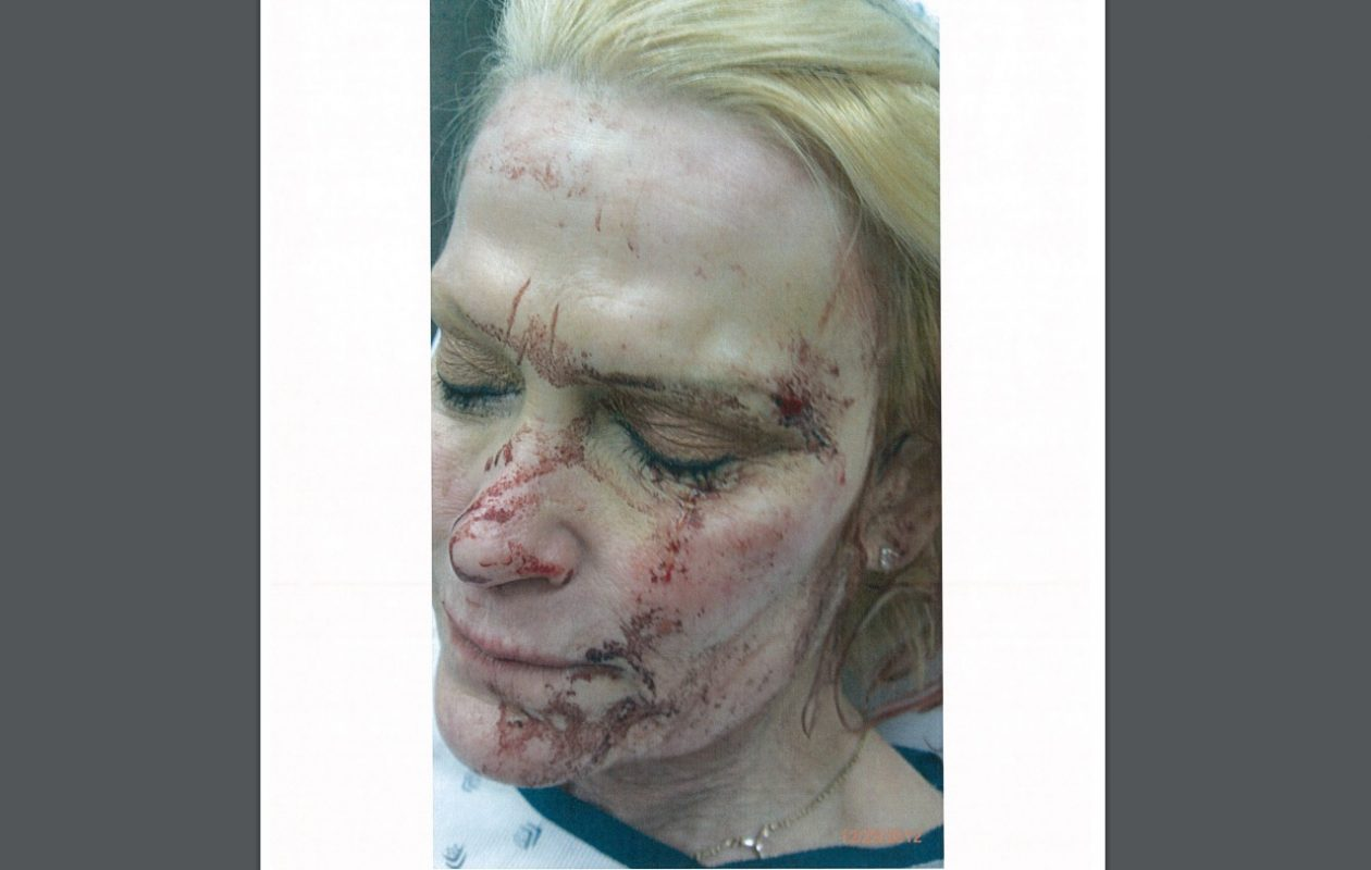 A photo of Bobbie L. Mael taken soon after her encounter with an Erie County Sheriff's deputy.