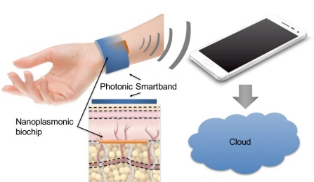 University at Buffalo engineers are working with Intel Corp. and Garwood Medical Devices to develop technology that combines implantable sensors, a wearable device and software to better identify and monitor such conditions as lung cancer. (Illustration courtesy University at Buffalo)