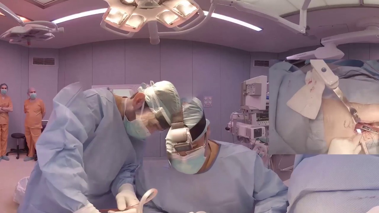 A Direct Anterior Approach for a Total Hip Arthroplasty: A 360º (VR) Educational Experience
