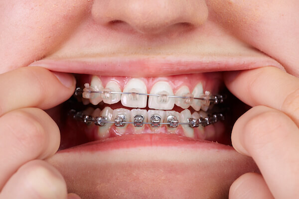 braces myths