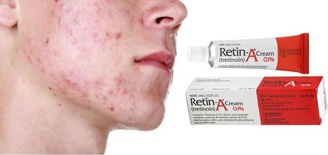 Retin A Cream Acne Ortho Cyclen Vs Ortho Tri Cyclen Lo