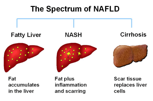 Tennessee Health Dept. warns of nonalcoholic fatty liver disease