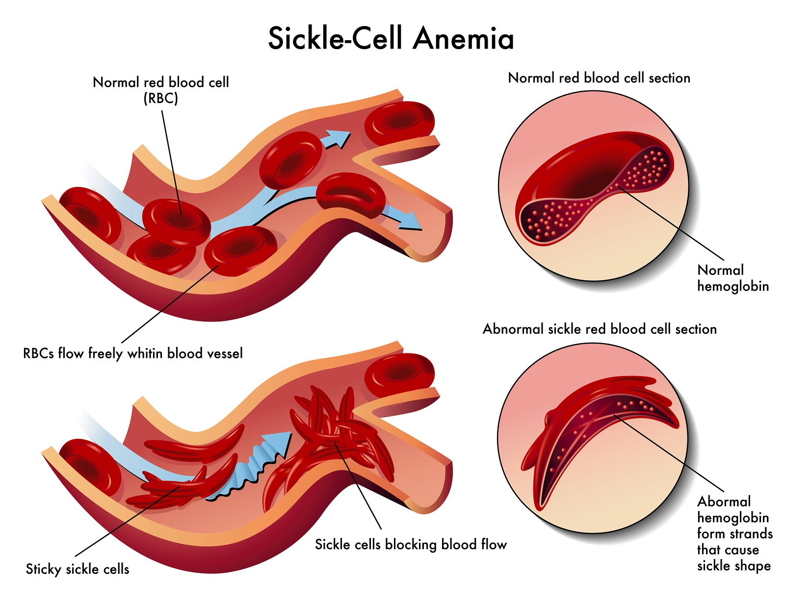 Tennessee Health Department warns of Sickle Cell disease