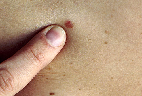 Seminar about Skin Cancer Dangers at StoneCrest in Smyrna