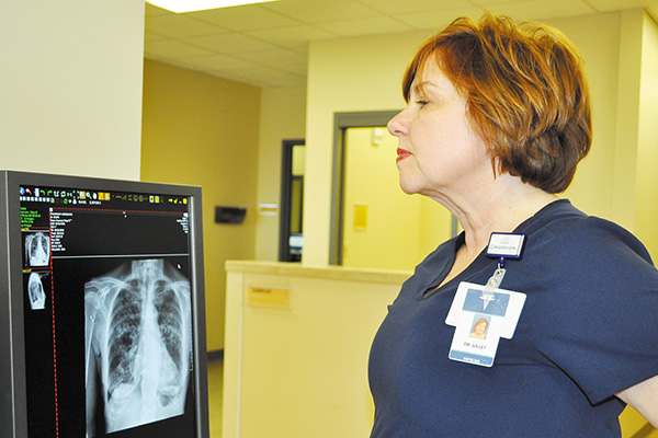 Increasing Number of Women Diagnosed with Lung Cancer
