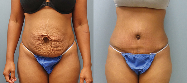 Varied options are available to address tummy issues