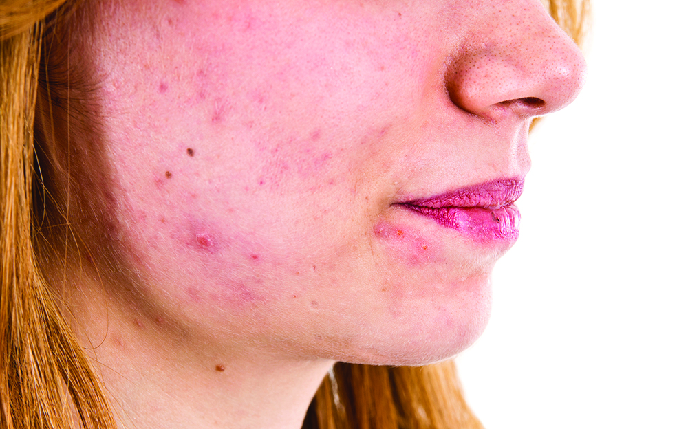 Though common, acne still frustrating condition