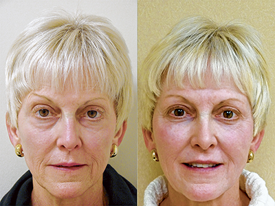 Actual patient of Dr. Finger, before and after treatment with facial fillers.