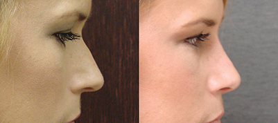 What exactly is a nose job and what does it involve?