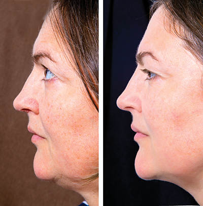 Before and after treatment for double chin.