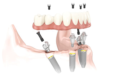 All-on-4 implant system can restore beautiful smile