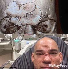 MMA Shattered Face