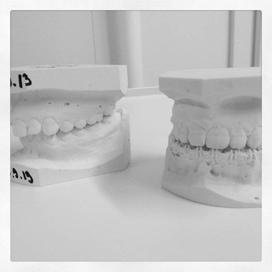 3049589-1518100107046-teeth.jpg