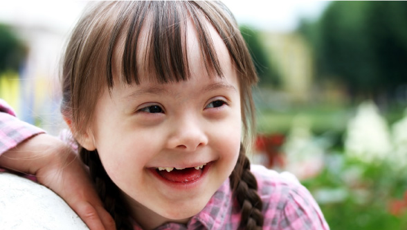 Down Syndrome Infants Down Syndrome Advocates
