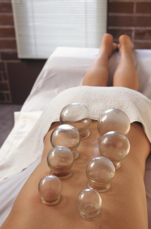 acupuncture cupping method