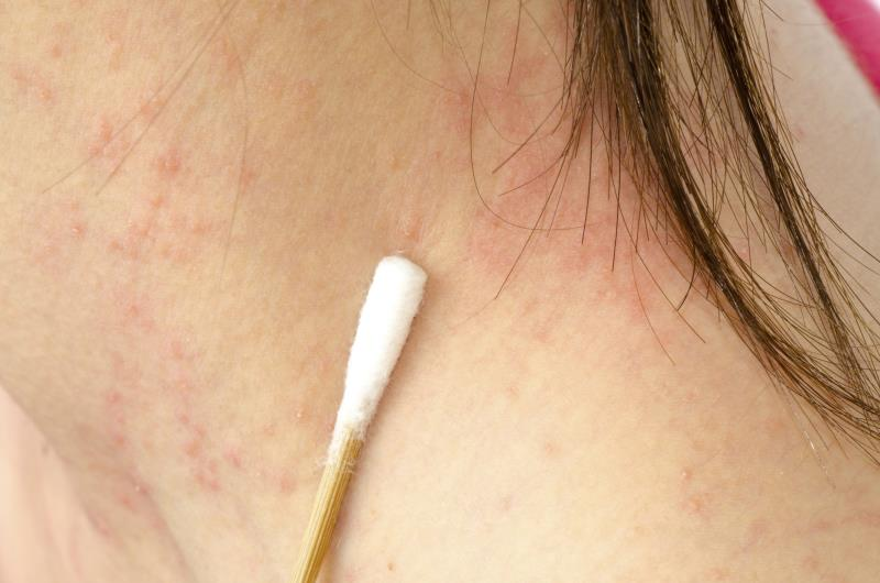 How can you prevent skin rashes from itching?