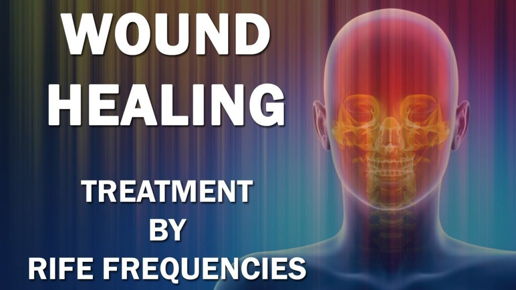 Wound Healing – RIFE Frequencies Treatment – Energy & Quantum Medicine with Bioresonance