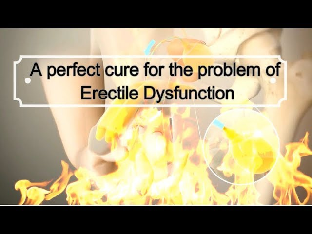 A perfect cure for the problem of Erectile Dysfunction | Health Fitness Beauty