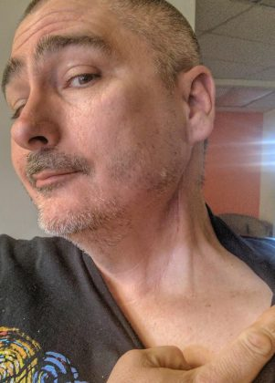 Sparks' HPV Neck Scar