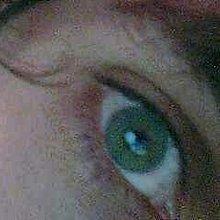 Eye 2 0