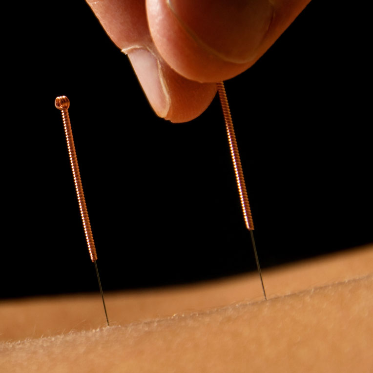 Acupuncture Could Cool Hot Flashes in Breast Cancer Survivors