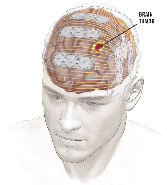 Optune is a device worn on the head that delivers low-intensity electrical fields, known as tumor-treating fields, directly to brain tumors.