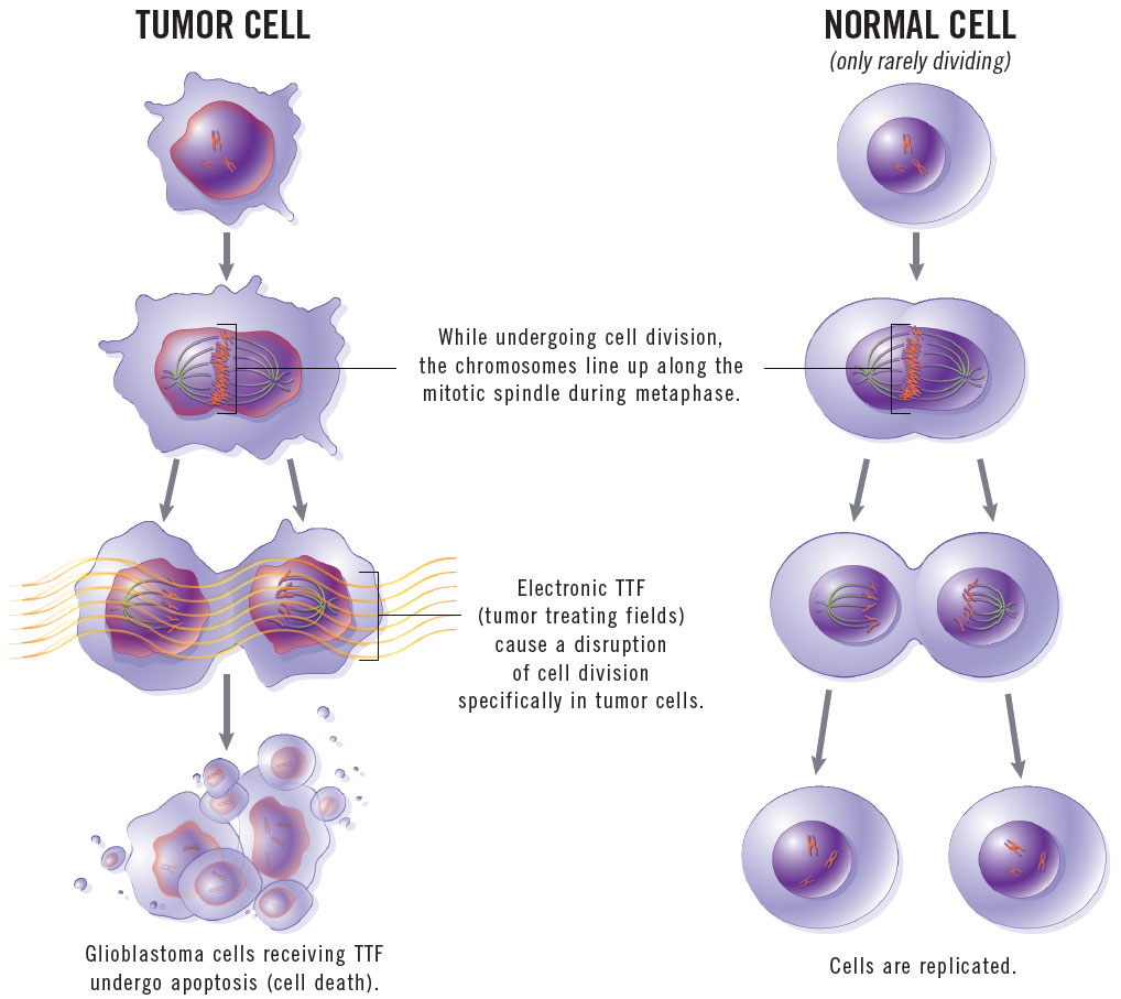 How Tumor-Treating Fields Work
