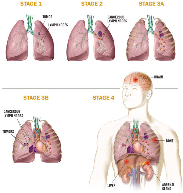 Following a lung cancer diagnosis, staging determines the best options for treatment. Many factors are evaluated, including the size of the tumor and the extent of spread.