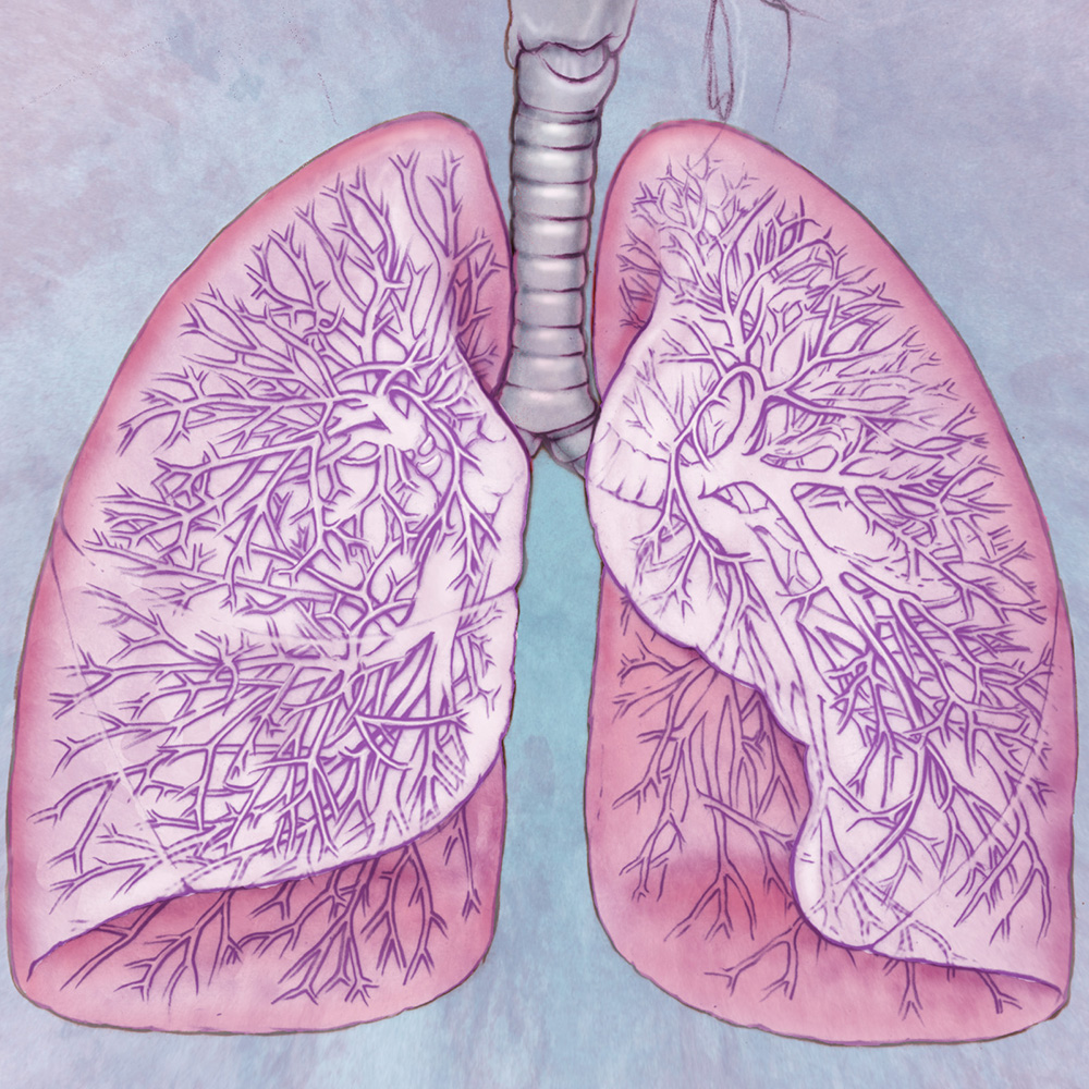 how to catch lung cancer early