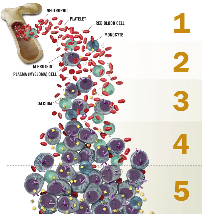 multiple myeloma Myeloma is a cancer that affects b cells, the immune cells responsible for the production of antibodiesnormal b cells develop in bone marrow, where myeloma grows.