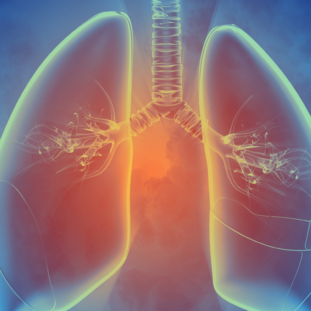 Expert Discusses Using EGFR TKIs to Treat Lung Cancer
