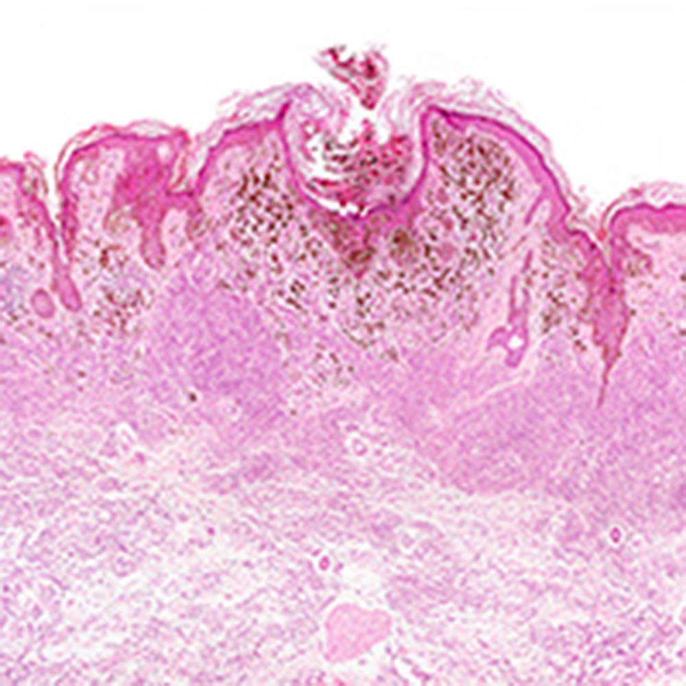 White Blood Cell Ratios Predict Melanoma Survival