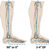 Ankle Alignment