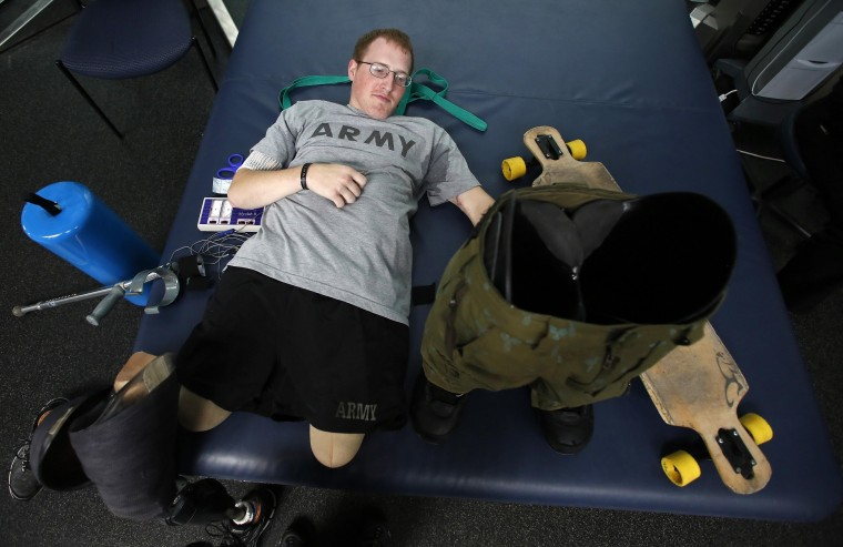 Sgt. Matt Krumwiede prepares to put on prosthetic legs to practice riding his longboard, a type of skateboard, at the Center for the Intrepid at Brooke Army Medical Center in San Antonio, Texas, February 24, 2014. Krumwiede was on patrol in Afghanistan in 2012 when he stepped on an improvised explosive device which tore away both his legs, damaged his left arm, and ripped open his abdominal cavity. Since then he has undergone dozens of surgeries and spent time recovering at Brooke Medical Center in San Antonio, Texas, learning to walk again with the use of prosthetic legs. In June 2014, he visited to his hometown of Pocatello, Idaho for the first time since he was injured. Picture taken February 24, 2014. (Jim Urquhart/Reuters)