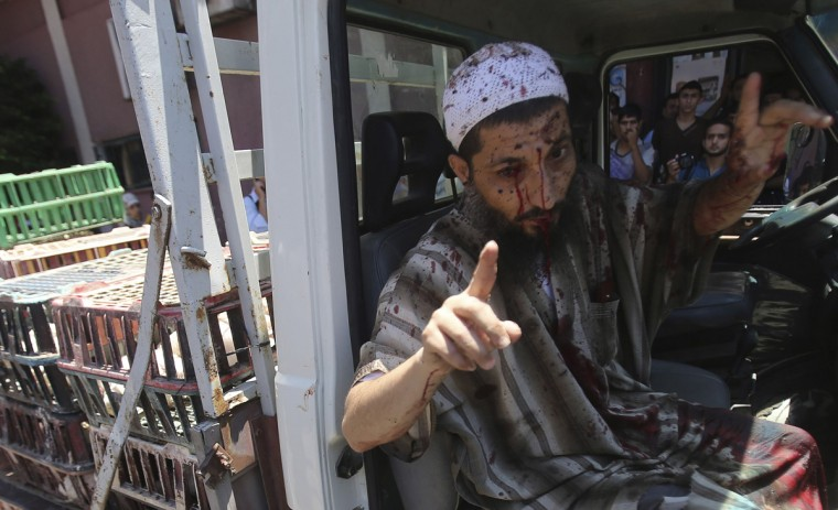 A Palestinian man, who medics said was wounded by an Israeli air strike, raises his fingers as he arrives to a hospital in Khan Younis in the southern Gaza Strip July 24, 2014. Israel won a partial reprieve from the economic pain of its Gaza war on Thursday with the lifting of a U.S. ban on commercial flights to Tel Aviv, as fighting pushed the Palestinian death toll over 700. A truce between the Jewish state and Hamas Palestinian fighters remained elusive despite intensive mediation bids. Palestinians said residents of two southern villages were trapped by days of tank shelling, with medics unable to evacuate wounded, and U.N. agencies said more than 140,000 people had been displaced. Hamas fired rockets at Tel Aviv and said its gunmen carried out a lethal ambush on Israeli soldiers in north Gaza. (Ibraheem Abu Mustafa/Reuters)