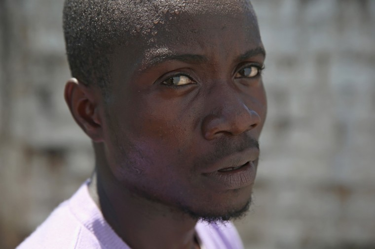 Ebola survivor Mohammed Wah, 23, stands in the low-risk section of the Doctors Without Borders (MSF), Ebola treatment center on October 16, 2014 in Paynesville, Liberia. The construction worker said that Ebola killed 5 members of his extended family and he thinks he contracted the disease while caring for his neffew. The virus has a 70 percent mortality rate, according to the World Health Organization, but leaves survivors immune to the strain that sickened them. (Photo by John Moore/Getty Images)