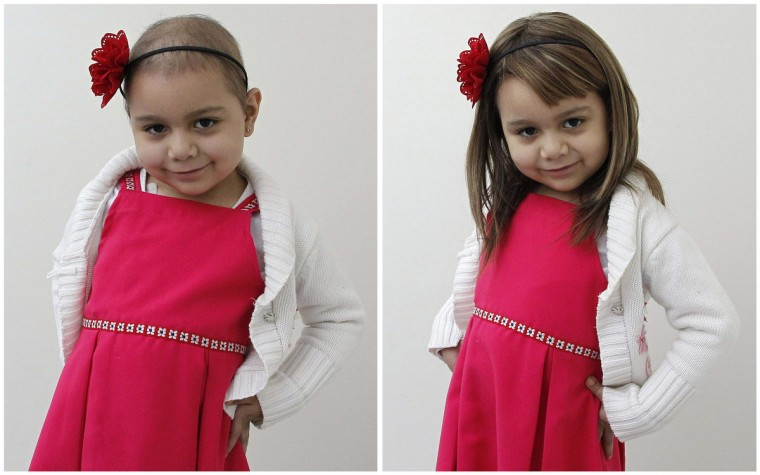 A combination of pictures shows Alexandra Munoz, 5, who lost her hair due to chemotherapy for a brain tumour, posing for a photograph without (L) and with a natural hair wig (R), which she received as a donation from hair stylist Marcelo Avatte in the cancer ward of the Luis Calvo Mackenna Hospital in Santiago. The wigs, handmade by Italian-Chilean hair stylist Marcelo Avatte and his team, have helped the children regain their self-esteem and confidence during cancer treatment. Renowned for making customised wigs, Avatte has donated more than 300 wigs since 2009 and says he was motivated to begin the project by the pain he felt when his own son lost his hair during chemotherapy. (Rodrigo Garrido/Reuters)