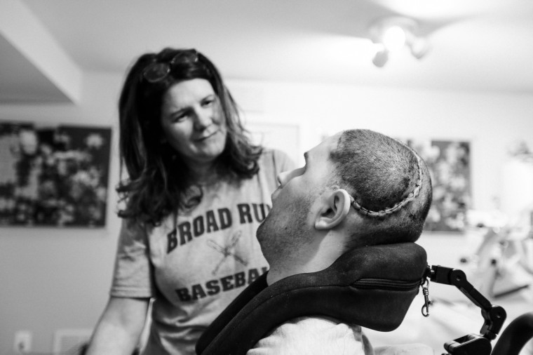Sue Diviney looks at her son Ryan as he turns his head. Ryan's scar is from a recent skull surgery done to add a prosthetic skull part to his head. (Kaitlin Newman/For The Baltimore Sun)