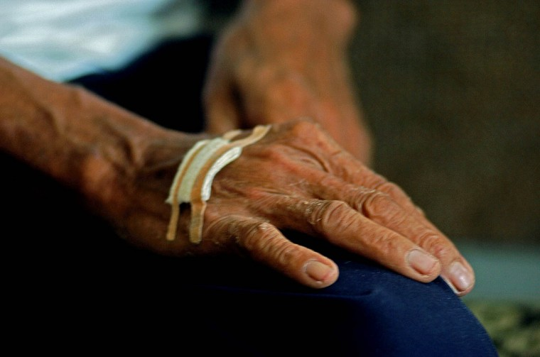The bandaged hand of Jafar Ibrahim, 58, father of Mimi and sole survivor of her family, who speaks about his ordeal Wednesday, Jan. 19, 2005 following a tsunami that swept through the town in December. (Karl Merton Ferron, Baltimore Sun)