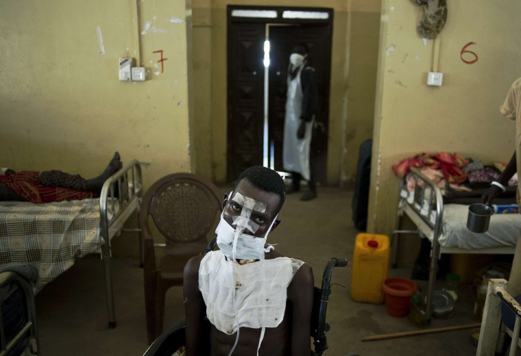 A patient being treated for multiple gunshot wounds to the face, chest and throat sits in a wheelchair in the Malakal teaching hospital on February 5, 2014. Recent fighting in the country has seen waves of brutal revenge attacks, as fighters and ethnic militia use the violence to loot and settle old scores, with the United Nations and rights workers reporting that horrific atrocities have been committed by both sides. Many fear the conflict has slid out of the control of political leaders, with ethnic violence and revenge attacks between the Dinka people of Kiir and the Nuer of Machar, the country's two largest groups. Carl de Souza/AFP/Getty Images