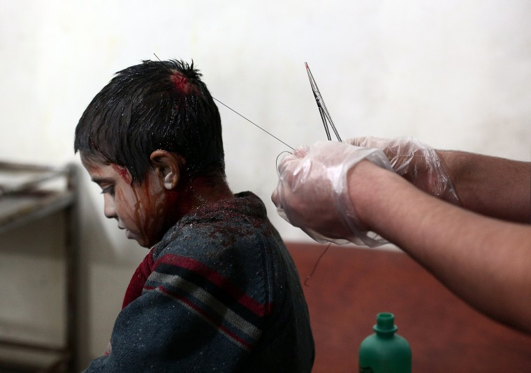 A medic stitches the head of a wounded Syrian boy at a makeshift clinic after a mortar reportedly fired by Syrian government forces fell in the besieged rebel town of Douma, 13 kilometres (eight miles) northeast of Damascus, on November 11, 2014. Closing in on Douma, a town of 200,000 residents under siege since last year, the army has seized control of Mleiha and Adra and has set its sights on Jobar and Ain Tarma, all towns to the east of the capital. ABD DOUMANY/AFP/Getty Images