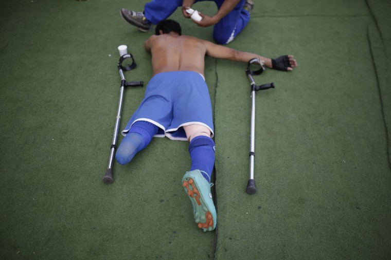"""Francisco Ascencio, a member of the Salvadorean national amputee soccer team, is massaged before a training session at Jorge """"Magico"""" Gonzalez National Stadium in San Salvador November November 19, 2014. The El Salvador Amputee National Football team was founded in 1987 by veterans who lost their limbs during the civil war in the Central American nation. Many members of the team joined as part of their rehabilitation process and the team have won the world championship three times, from 1987 to 1989. Picture taken November 19, 2014. REUTERS/Jose Cabezas"""