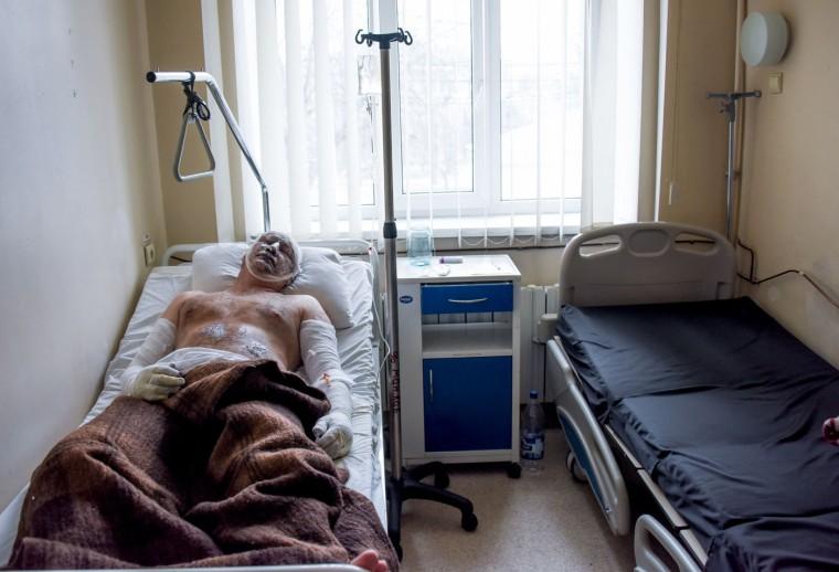 Igor Muryginn, a 42-year-old injured miner from the Zasyadko mine lies in a hospital in Donetsk, Ukraine, Wednesday, March 4, 2015. (AP Photo/Mstyslav Chernov)