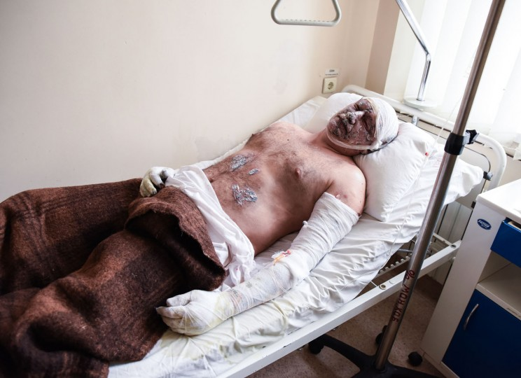 Igor Muryginn, a 42-year-old injured miner from the Zasyadko mine lies in a hospital in Donetsk, Ukraine, Wednesday, March 4, 2015. (AP Photo/Mstyslav Chernov)