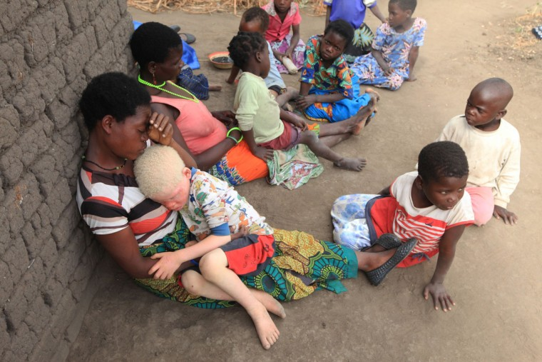 "Edna Cedrick, 26, left, holds her surviving albino son after his twin brother, who also had albinism, was snatched from her arms in a violent struggle. Cedrick says she is haunted daily by images of the decapitated head of her 9-year-old son. At least 18 Albino people have been killed in Malawi in a ""steep upsurge in killings"" since November 2014, and five others have been abducted and remain missing, a new Amnesty International report released Tuesday says. (AP Photo/Tsvangirayi Mukwazhi)"