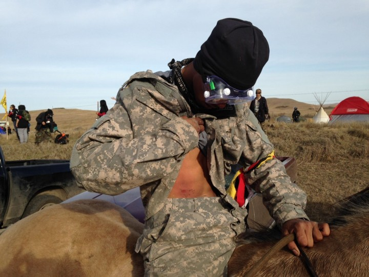 A Dakota Access oil pipeline protester who identified himself only as Smokey shows where he was hit by a shotgun bean bag round fired by officers trying to force protesters from a camp on private land in the path of pipeline construction, on Thursday, Oct. 27, 2016 near Cannon Ball, N.D. Authorities say protesters threw rocks at officers and threatened them on horseback.Soldiers and law enforcement officers dressed in riot gear began arresting protesters who had set up a camp on private land to block construction of the Dakota Access oil pipeline. (AP Photo/James MacPherson)