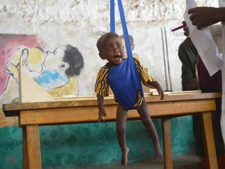 A malnourished child is processed by an aid worker for a UNICEF- funded health programme catering to children displaced by drought, at a facility in Baidoa town, the capital of Bay region of south-western Somalia where the spread of cholera has claimed tens of lives of IDP's compounding the impact of drought on March 15, 2017. The United Nations is warning of an unprecedented global crisis with famine already gripping parts of South Sudan and looming over Nigeria, Yemen and Somalia, threatening the lives of 20 million people. For Somalis, the memory of the 2011 famine which left a quarter of a million people dead is still fresh. (Tony Karumba/AFP/Getty Images)