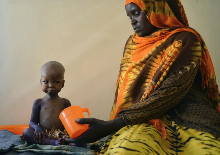 A malnourished child is fed a special formula by her mother at a regional hospital in Baidoa town, the capital of Bay region of south-western Somalia where severe cases of malnourishment and cholera are reffered by a UNICEF- funded health programme for children and adults displaced by drought on March 15, 2017. The United Nations is warning of an unprecedented global crisis with famine already gripping parts of South Sudan and looming over Nigeria, Yemen and Somalia, threatening the lives of 20 million people. For Somalis, the memory of the 2011 famine which left a quarter of a million people dead is still fresh. (Tony Karumba/AFP/Getty Images)