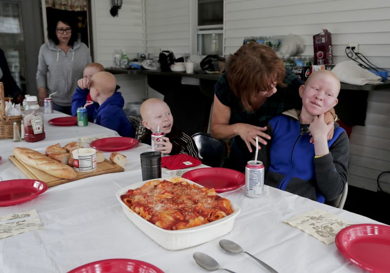 Donna Fagan, second from right, talks with Pendo Sengerema, right, while serving a meal to her and Baraka Cosmas, center, Elissa Montanti, left, Emmanuel Festo, second from left, and Mwigulu Matonange, Sunday, June 4, 2017, in Staten Island, N.Y. The four, all albinos, lost limbs to attackers who believe body parts from albinos hold magical powers. All were on a return trip to New York to be refitted for new prostheses for their growing bodies. (AP Photo/Julie Jacobson)
