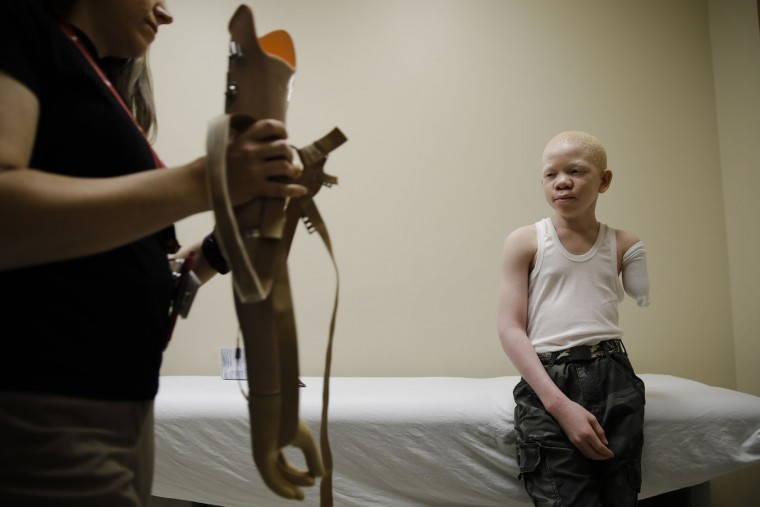Jennifer Stieber brings in Mwigulu Matonange's prosthetic limb during a fitting at Shriners Hospital for Children in Philadelphia, Tuesday, May 30, 2017. Cosmas, an albino from Tanzania was on a return trip to the United States to be refitted for a new prosthetic. Albinos in traditional communities in Tanzania are hunted for their limbs which attackers believe hold magical power. (AP Photo/Matt Rourke)